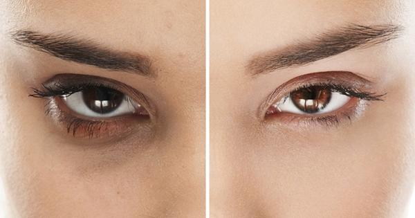 Làm mờ quầng thâm dưới mắt Quầng thâm và bọng mắt xuất hiện do lưu thông máu kém. Vitamin A, C, D và B3 trong bơ giúp giảm vấn đề này. Công thức: Xay nhuyễn 1/2 quả bơ và 4 quả dưa chuột trong máy xay. Để hỗn hợp trong tủ lạnh trong 1 giờ. Sau đó thoa hỗn hợp lên mắt trong 25 phút. Bạn có thể lặp lại mỗi sáng.